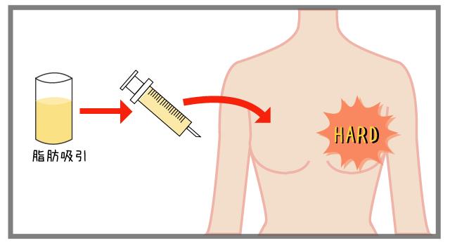 脂肪注入法豊胸で触り心地が「硬い」原因