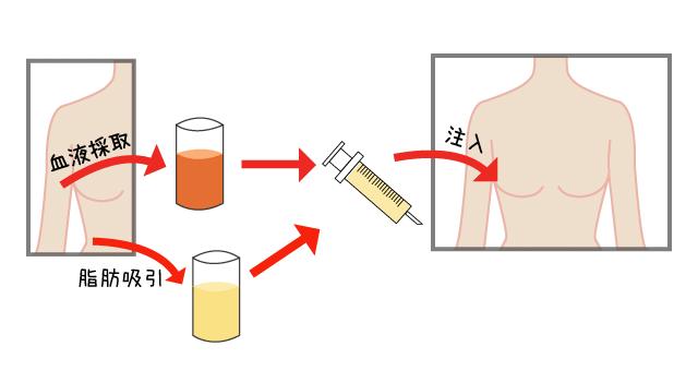 ACR血小板注入療法