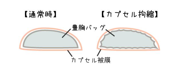 カプセル(被膜)拘縮