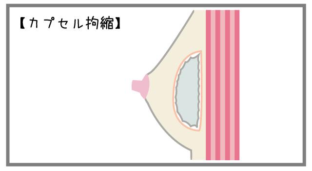 カプセル(被膜)拘縮の原因と治療法