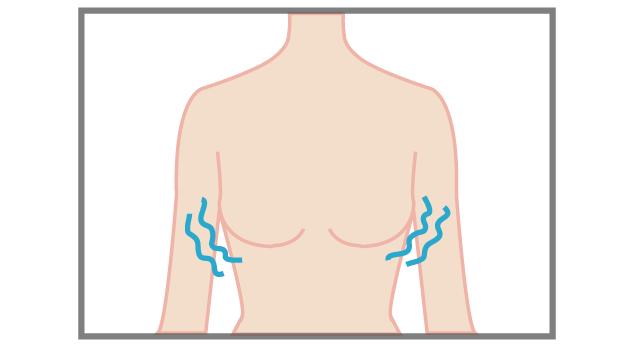 豊胸手術で胸が凍る?