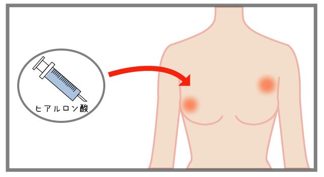 ヒアルロン酸豊胸のしこりの原因と対処法