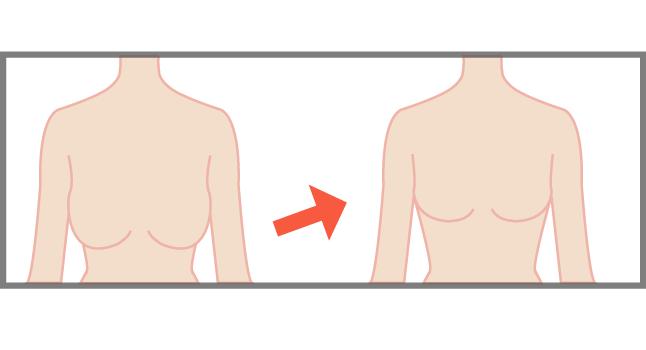 下垂した胸の改善方法