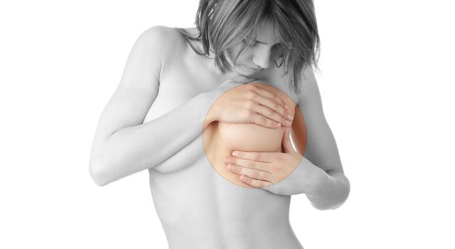 豊胸手術とALCL