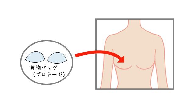 豊胸バッグ(プロテーゼ)挿入法