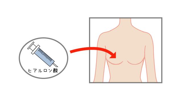 ヒアルロン酸注入法豊胸