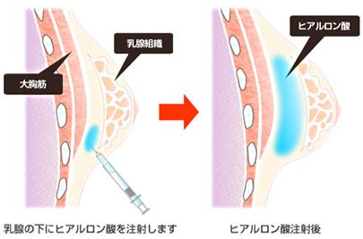 ヒアルロン酸注入